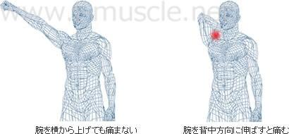 インピンシメント・シンドロームと肩の痛み